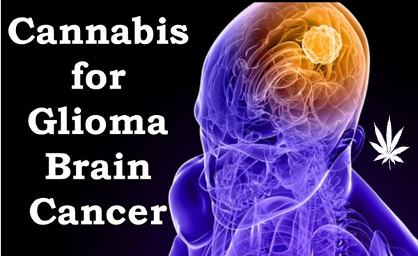 Cannabis for Glioma Brain Cancer