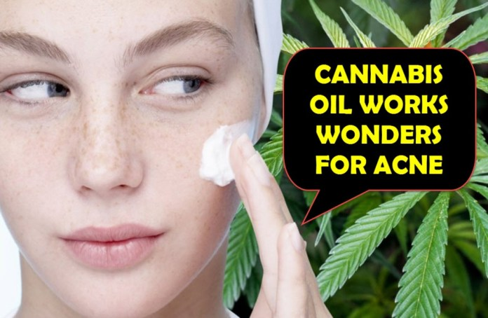 CANNABIS OIL FOR ACNE