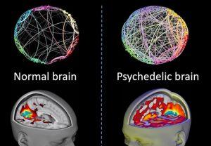 Normal Brain vs Psychedelic Brain