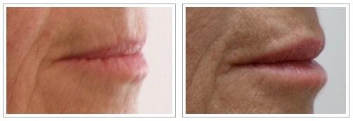 acido ialuronico labbra