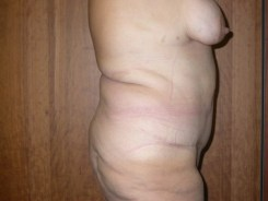 addominoplastica dopo
