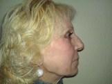 Full face treatment - dopo 1 mese
