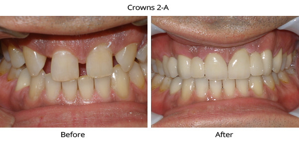 crowns_2a