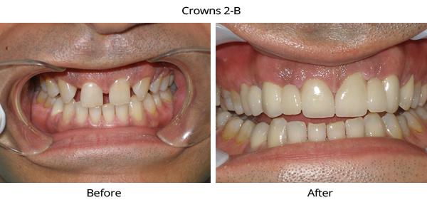 crowns_2b
