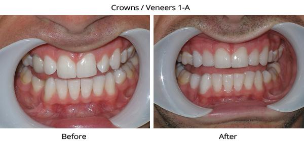 crownveneers_1a