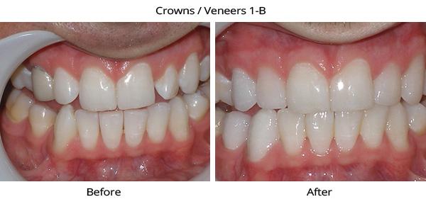 crownveneers_1b