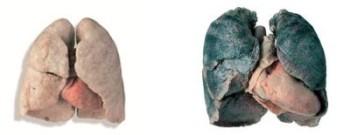 cadaver s black lungs