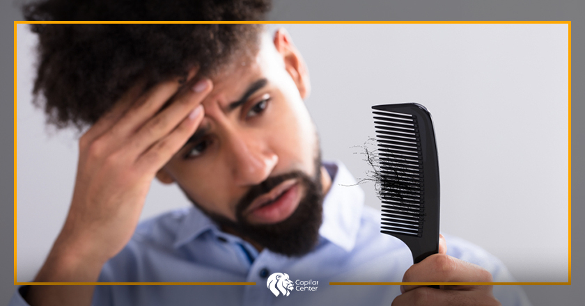 ¿Qué es la Alopecia Nerviosa?