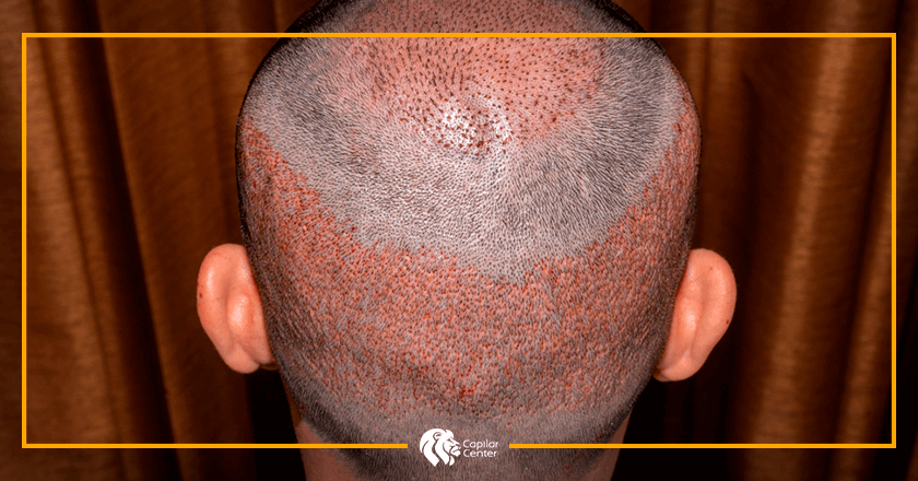 ¿Qué diferencia encontramos en el implante de pelo?