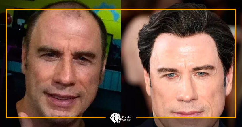 John Travolta - Implante Capilar
