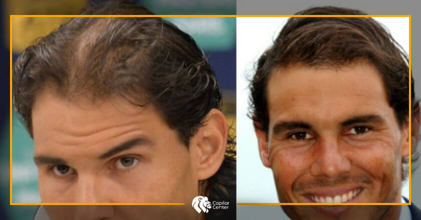 Rafael Nadal - Implante Capilar