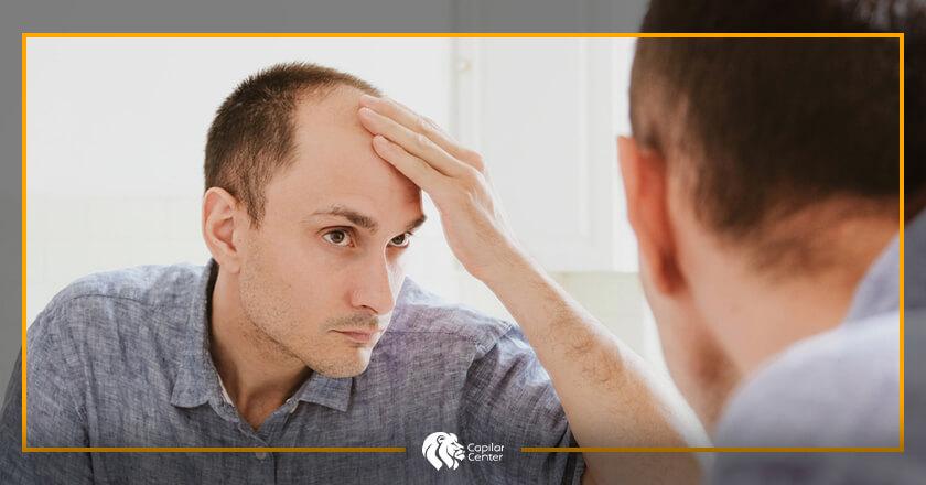 Factores y diagnóstico de la alopecia