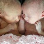 Twin Life Milestones