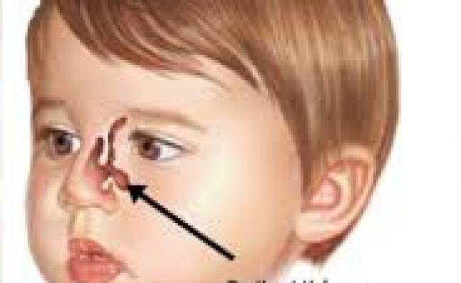 Cara Menyembuhkan Polip Hidung Tanpa Operasi Mengobati