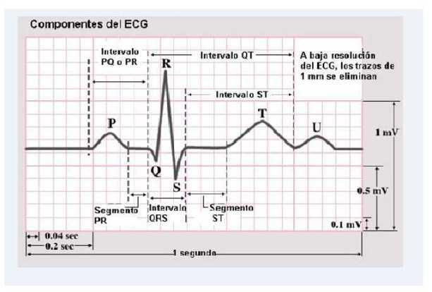 https://i0.wp.com/cardiacos.net/wp-content/uploads/2012/02/IntervalosECG2.jpg?resize=613%2C414
