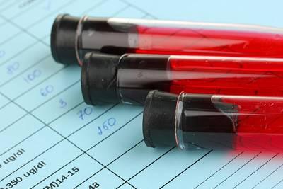 que es el vcm en analisis de sangre