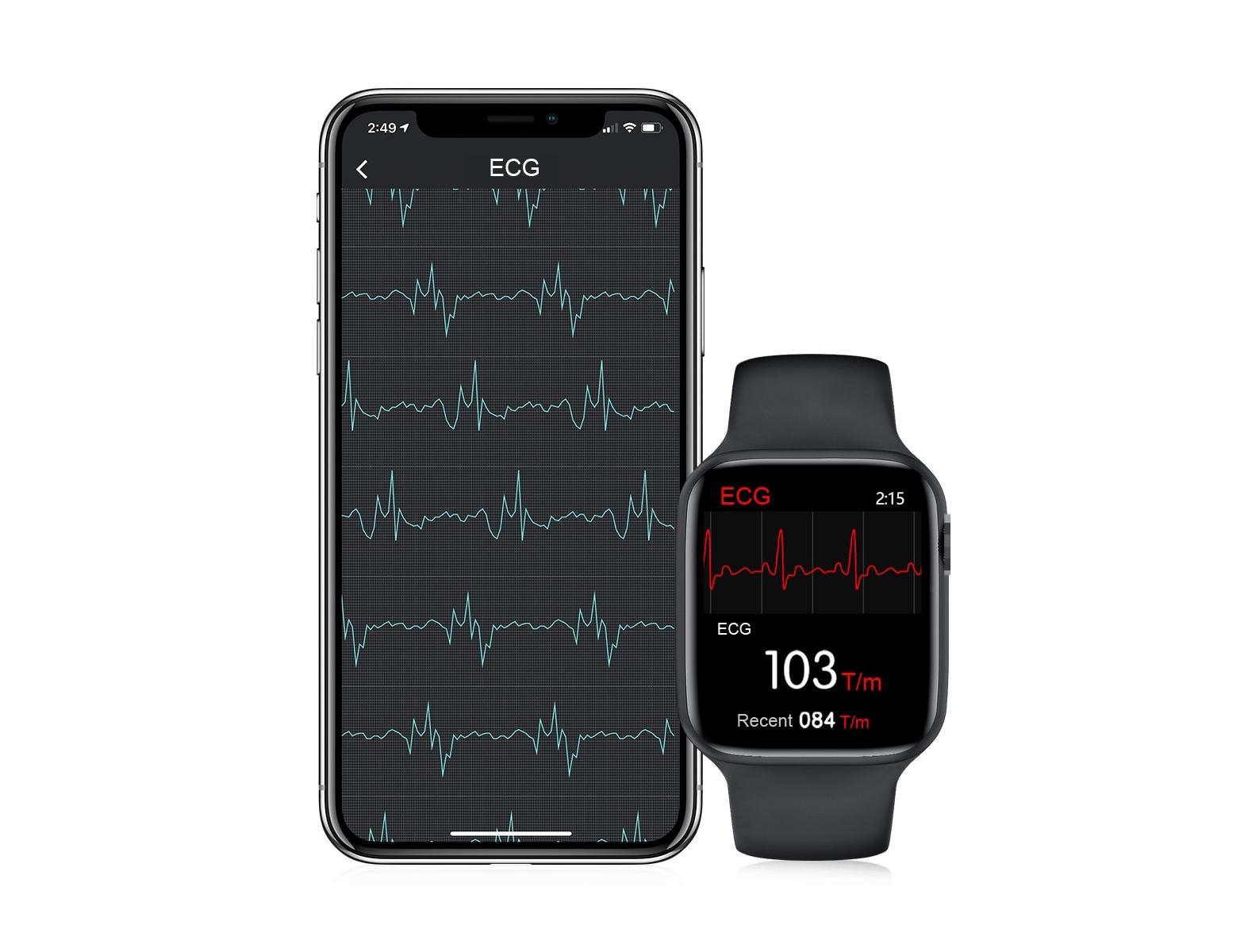 smartwatch smartphone ecg