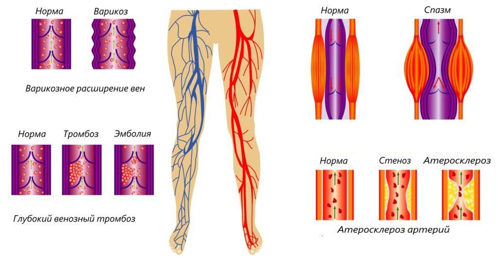 Шунтирование сосудов нижних конечностей отзывы после операции
