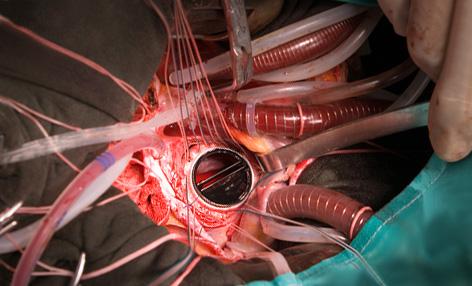 Как проходит замена клапана на сердце