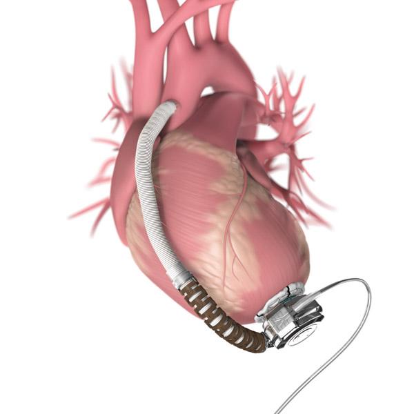 fda advisory panel gives green light to heartware ventricular assist