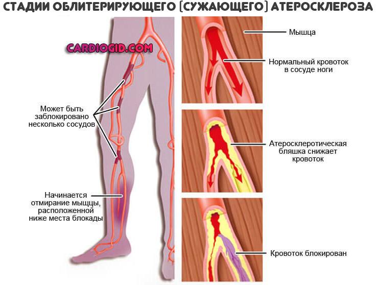সমর্থিত-এথেরোস্লেরোসিস