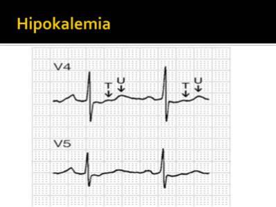 Pengaruh Elektrolit terhadap perubahan ECG  Cardiology