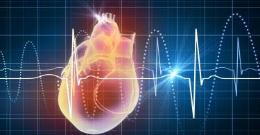 Tomografia Cardíaca