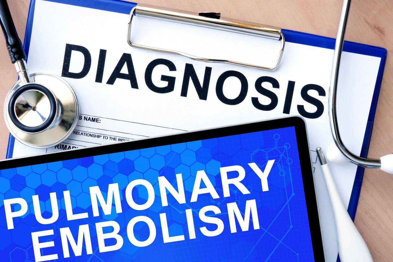 S embolia de pulmonar s /