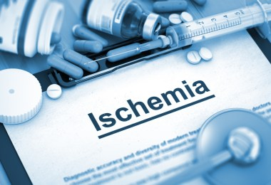 Ischemia, Medical Concept with Pills, Injections and Syringe. Ischemia, Medical Concept with Selective Focus. 3D.