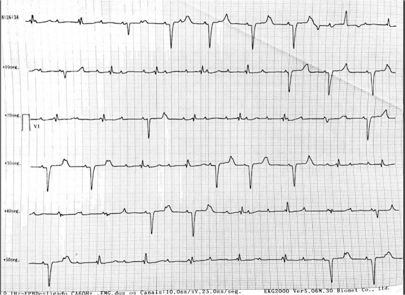 ECG Desafio - Derivação V1