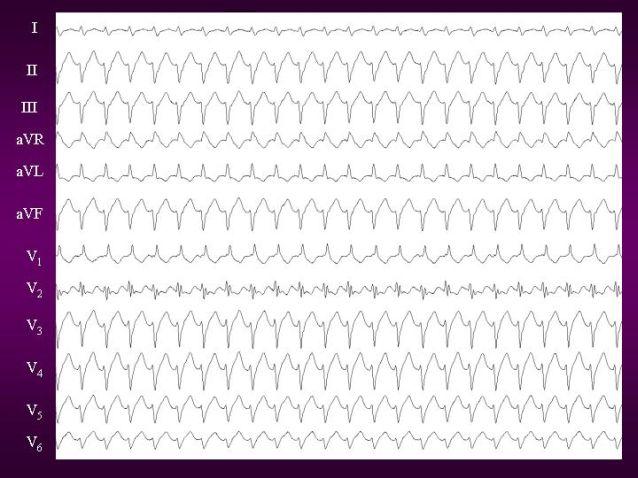 Idiopathic Fascicular Ventricular Tachycardia (Belhassen's Ventricular Tachycardia)