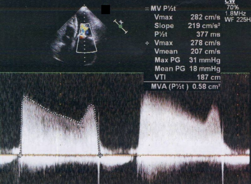 Vascular Doppler Peripheral