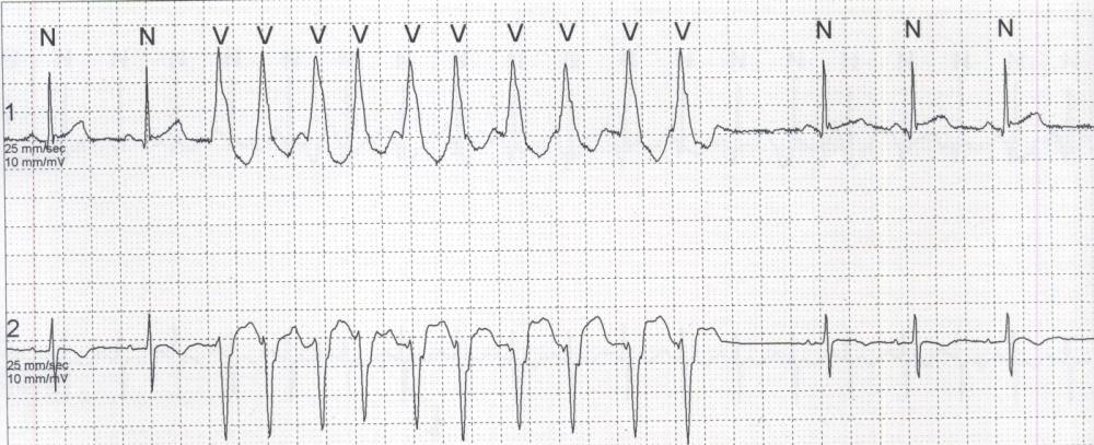 Tachycardiomyopathy