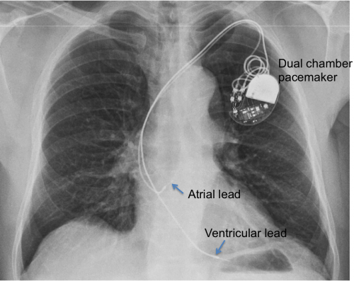 Dual chamber pacemaker  Chest Xray  Cardiophile MD