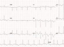 Cardiac Surgery – Page 4