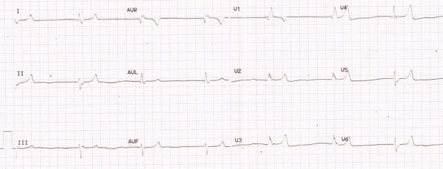 ECG in hyperkalemia