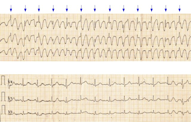 Tremor artefact resembling ventricular tachycardia