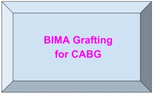 Bilateral internal mammary artery grafting for CABG