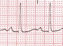 First degree AV block, sinus pause, QT prolongation