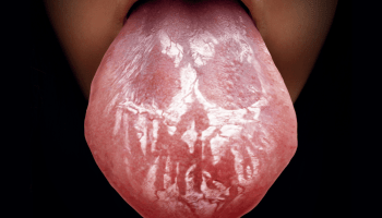 Leukoplakia Causes Symptoms And Diagnosis Cards Dental