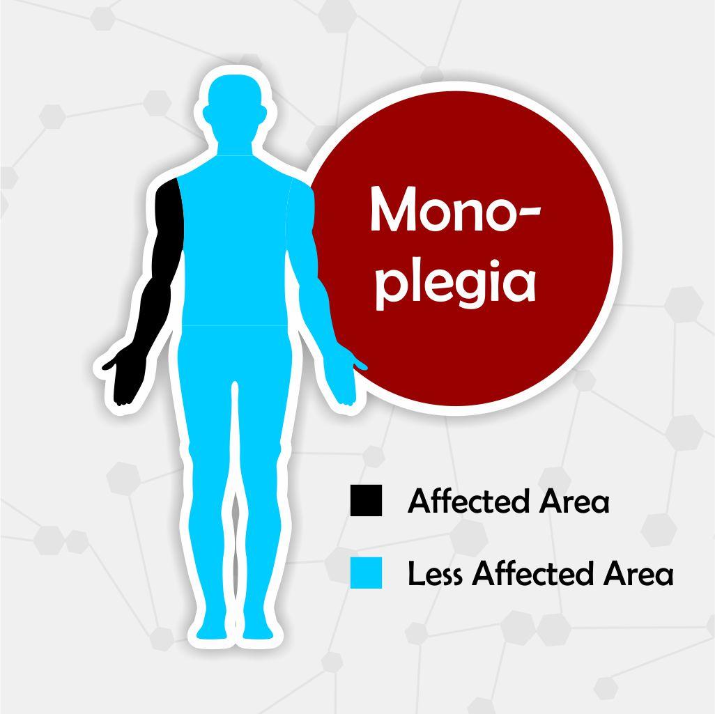 monoplegia