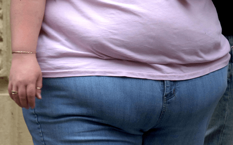 Large increase in hospital admissions where obesity is main or secondary reason 7