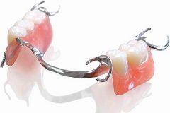 lower partial chobalt chrome denture