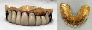 human teeth denture