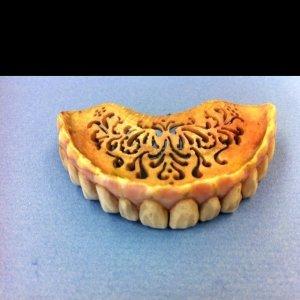 bone denture