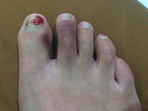 Lisa broken toe