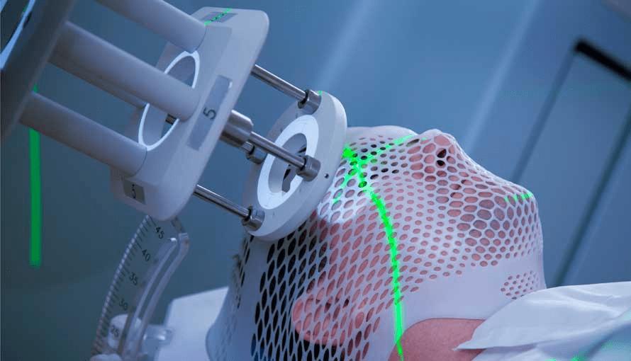 External beam radiation