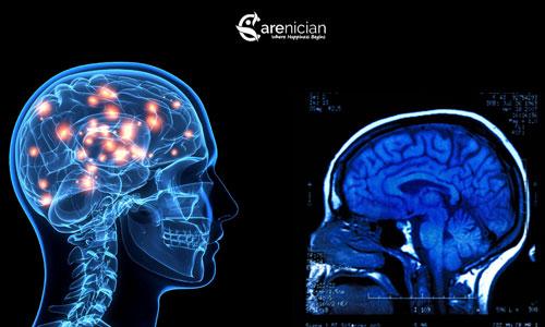 effects of amphetamine on brain
