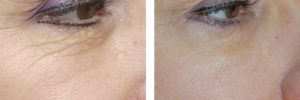 before-after-laser-eyelift