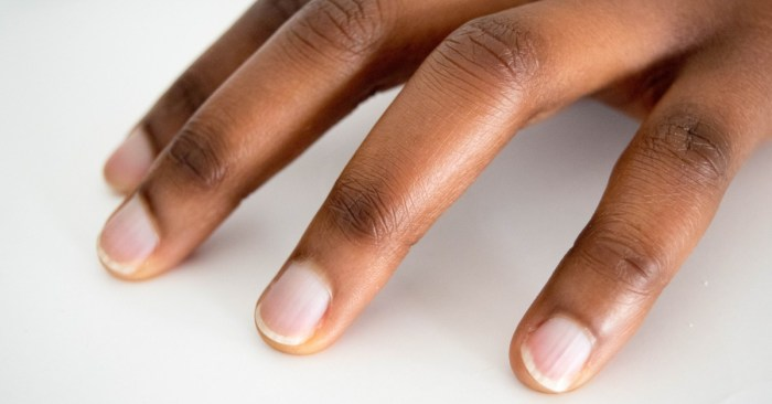 What Are 'COVID Nails'—And Are They a Sign You've Had the Virus? Here's What Doctors Say